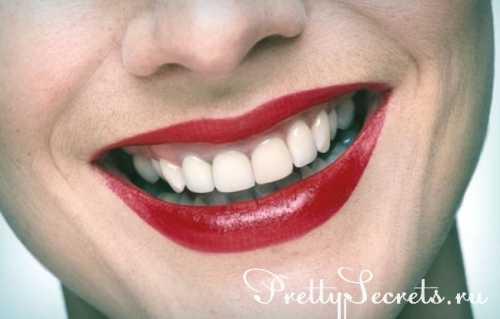 зубной камень: причины, лечение и избавление